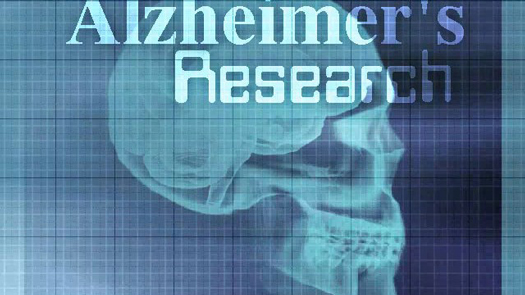 alzheimers-research.jpg
