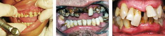dental_problems08-07-2012.jpg