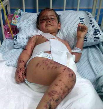 hanan_victim_of_israeli_bombs_08-12-2014_1.jpg